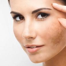 Pele e manchas faciais